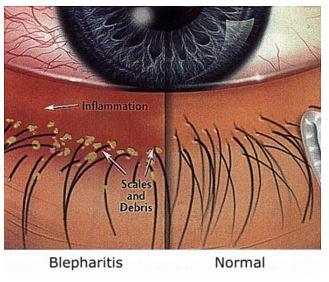 העין הפגועה בבלפריטיס