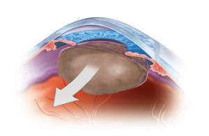 מחלת קטרקט בקרנית עין