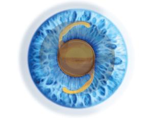 עדשה מלאכותית בתוך העין