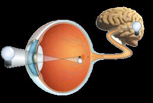 ניתוח קטרקט בעין - ד