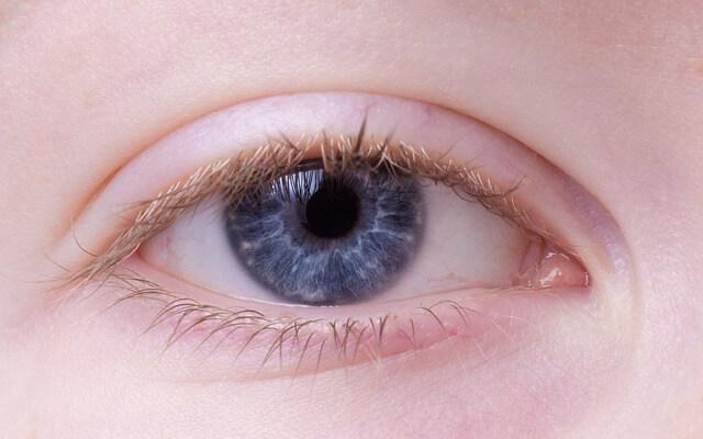 קרטוקונוס – קרנית העין