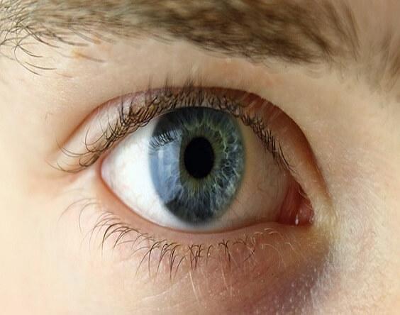 הסכמה מדעת לביצוע תיקון ראיה באמצעות אקסיימר לייזר